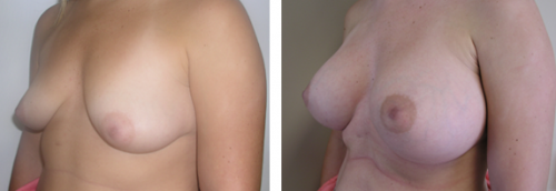 B to small D cup with saline implants without a breast lift 1d