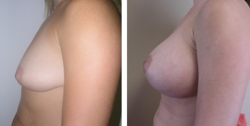 B to small D cup with saline implants without a breast lift 1e