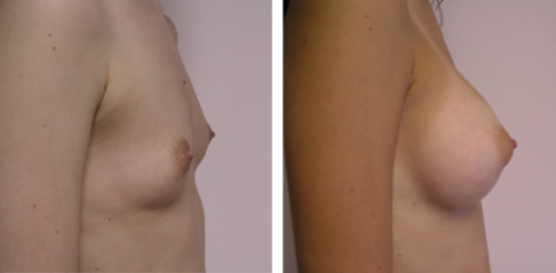 Full perky breasts with natural slope 1a