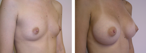 Full perky breasts with natural slope 1b