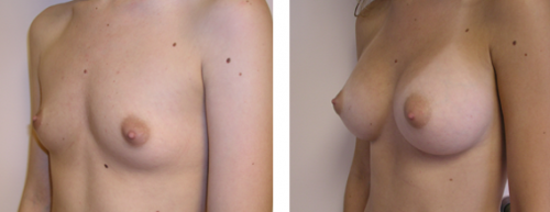 Full perky breasts with natural slope 1c
