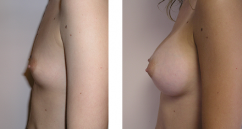 Full perky breasts with natural slope 1d