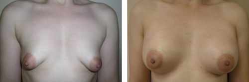 Tubular breasts, B to average C cup with gummy bear silicone implants
