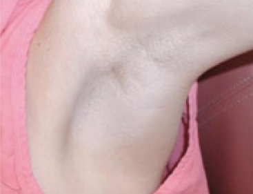 Scarless Breast Augmentation - Armpit Incision Scar